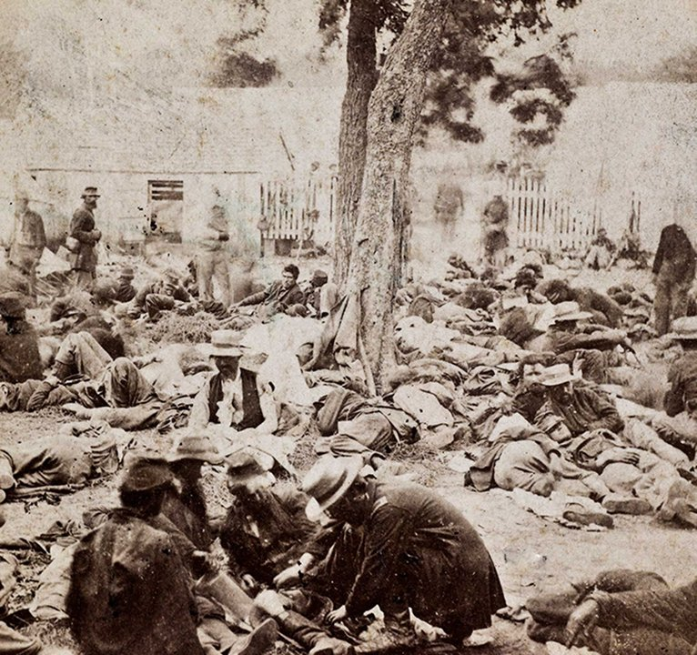 surgery in the civil war