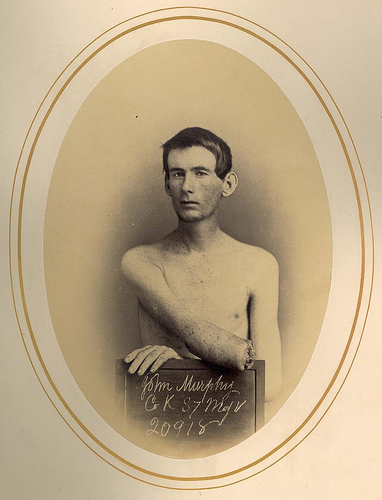 John K. Murphy, his right forearm, middle third was amputated.