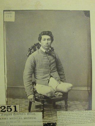 An injured soldier