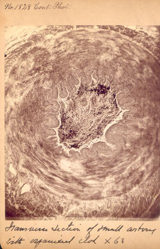 Detailed photograph of a wound.