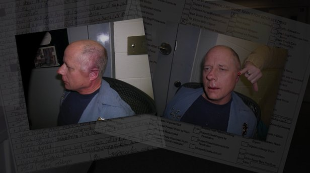 Deputy Faust's injuries