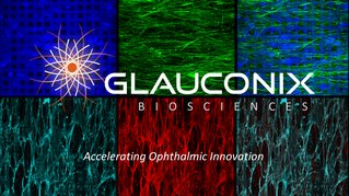 The Glauconix Biosciences logo features a background with six multi-colored panels with the text 'Glauconix Biosciences' overlayed in white font.